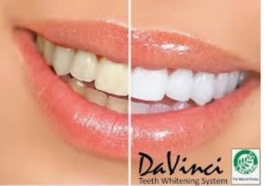 Davinci Teeth Whitening Special